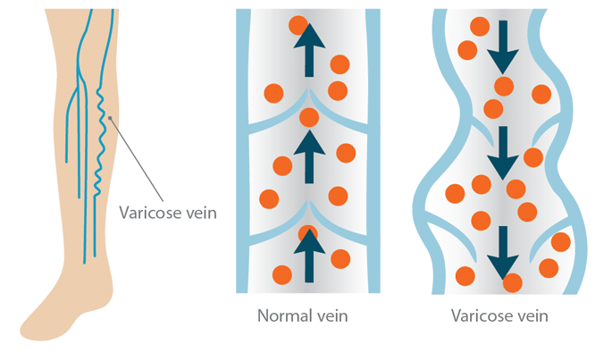 It's Time to Rethink Varicose Veins