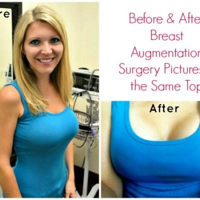 8 Weeks Post Op Plastic Surgery Update