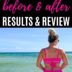 Coolsculpting Before and After Results and Review: Pinterest Hero