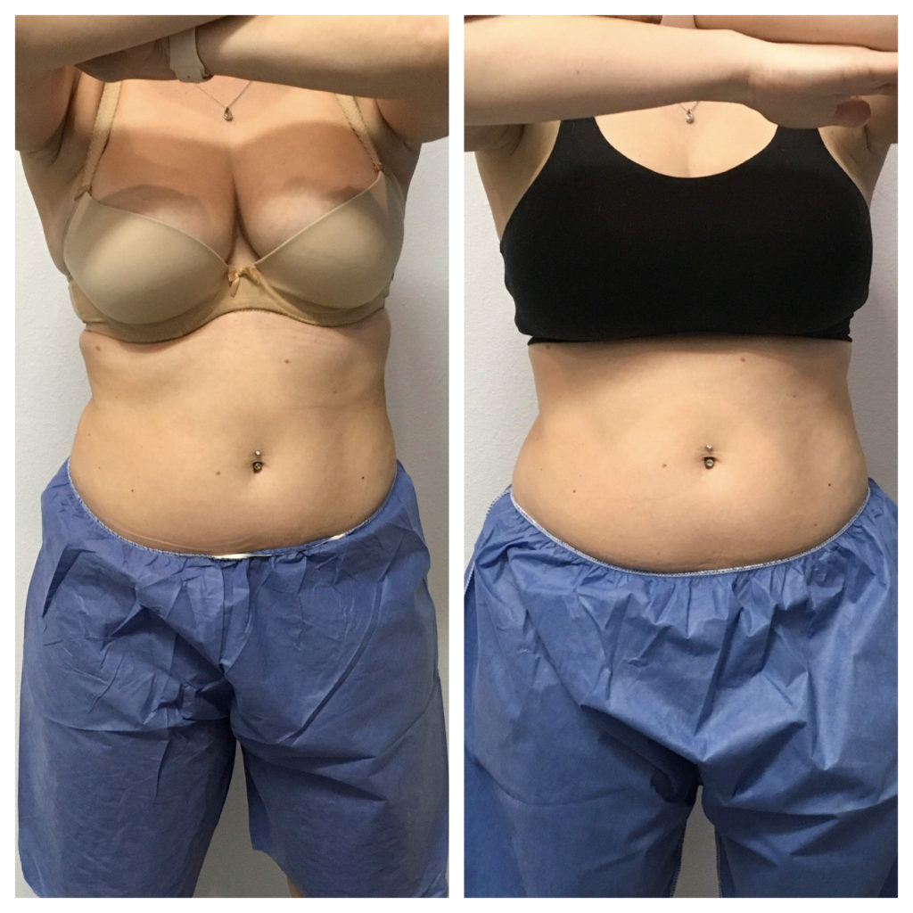 Back fat cool sculpting comparison from front of woman in bra and medical shorts.