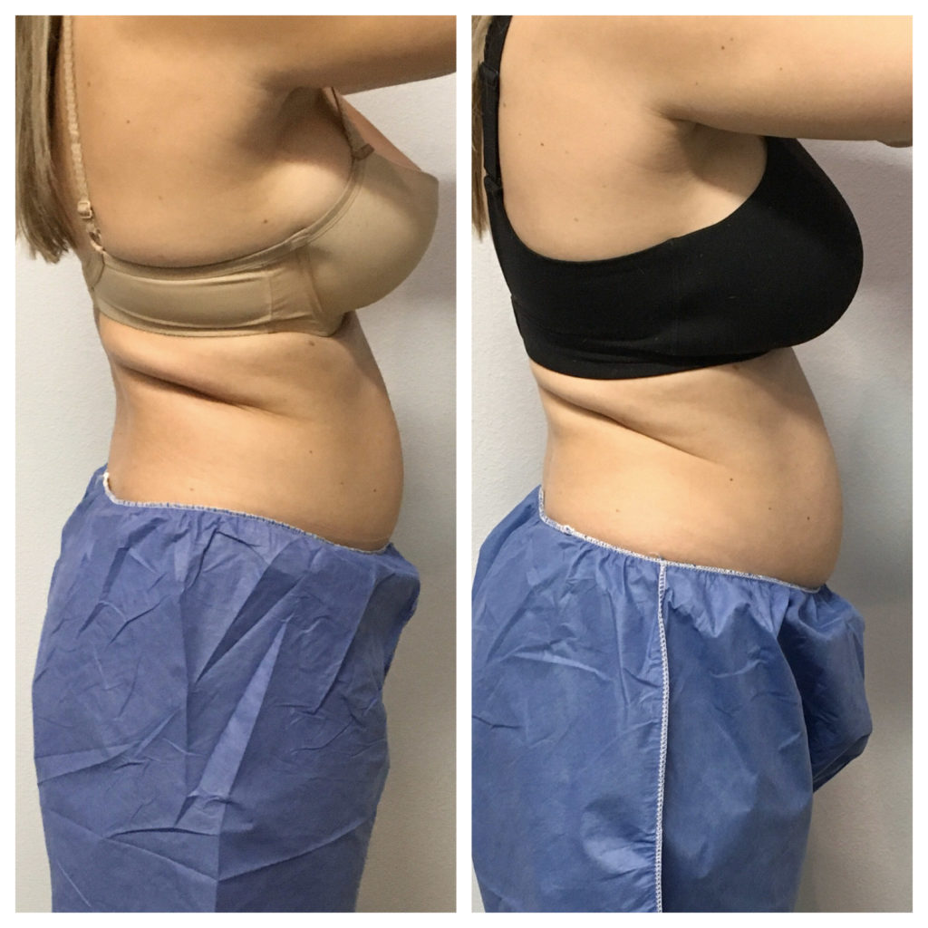 Side by side before and after Coolsculpting - 1st treatment and 2nd treatment.