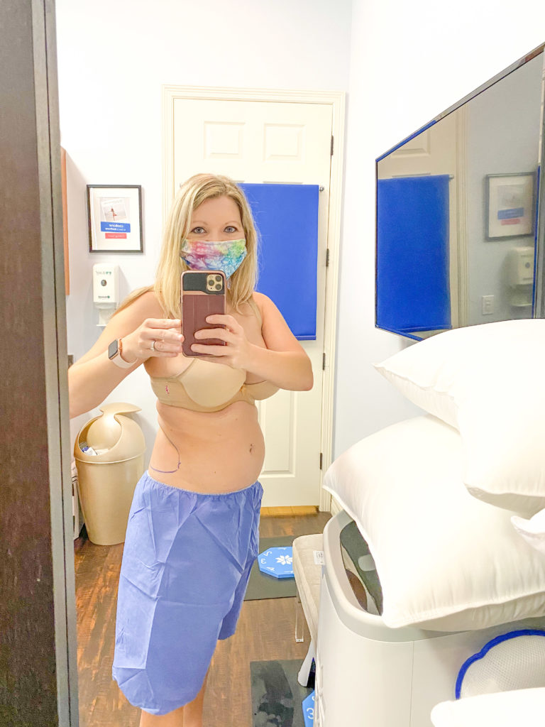 Woman with treament areas marked before first Coolsculpting appointment