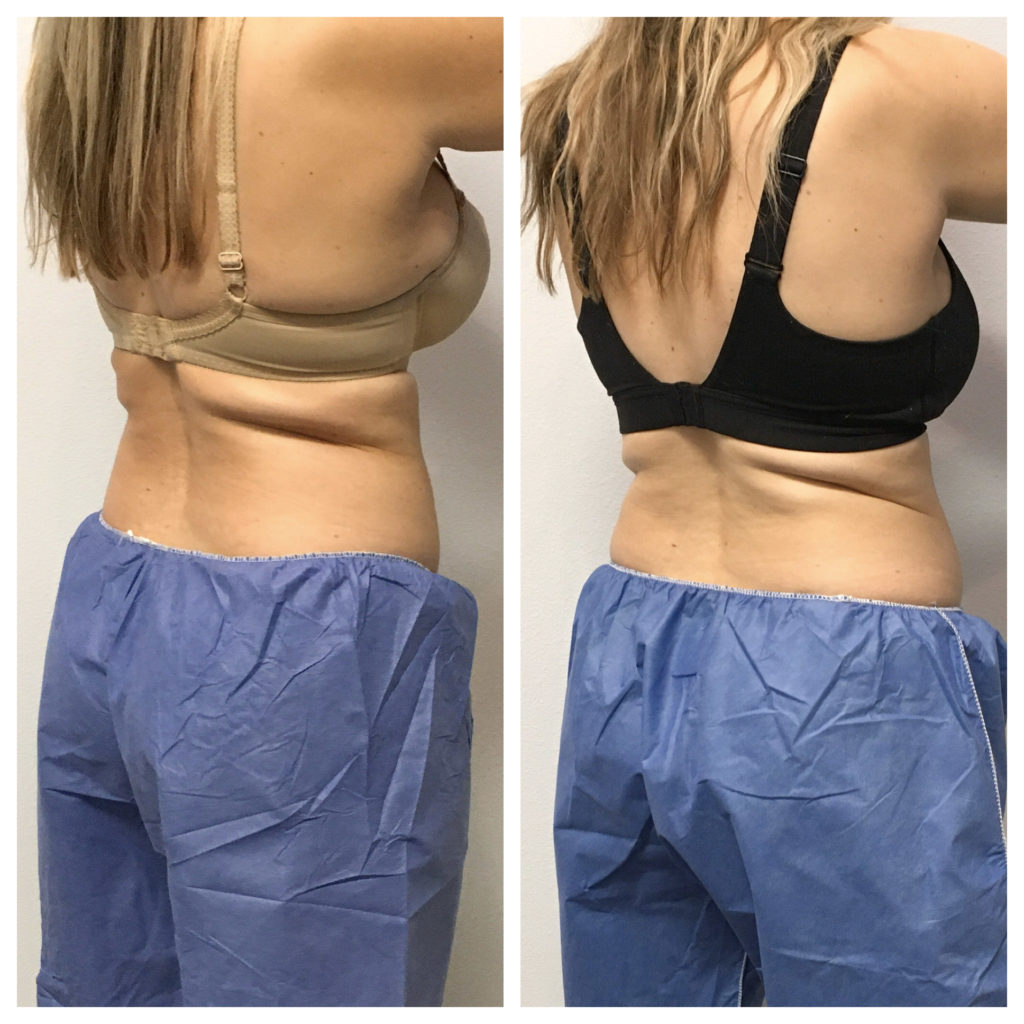 Below bra Coolsculpting sideview of results
