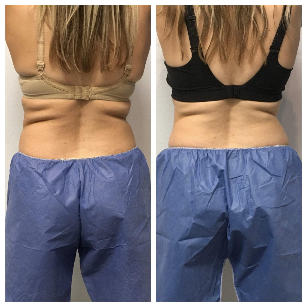 Back flanks of woman in side by side comparison of Coolsculpting progress